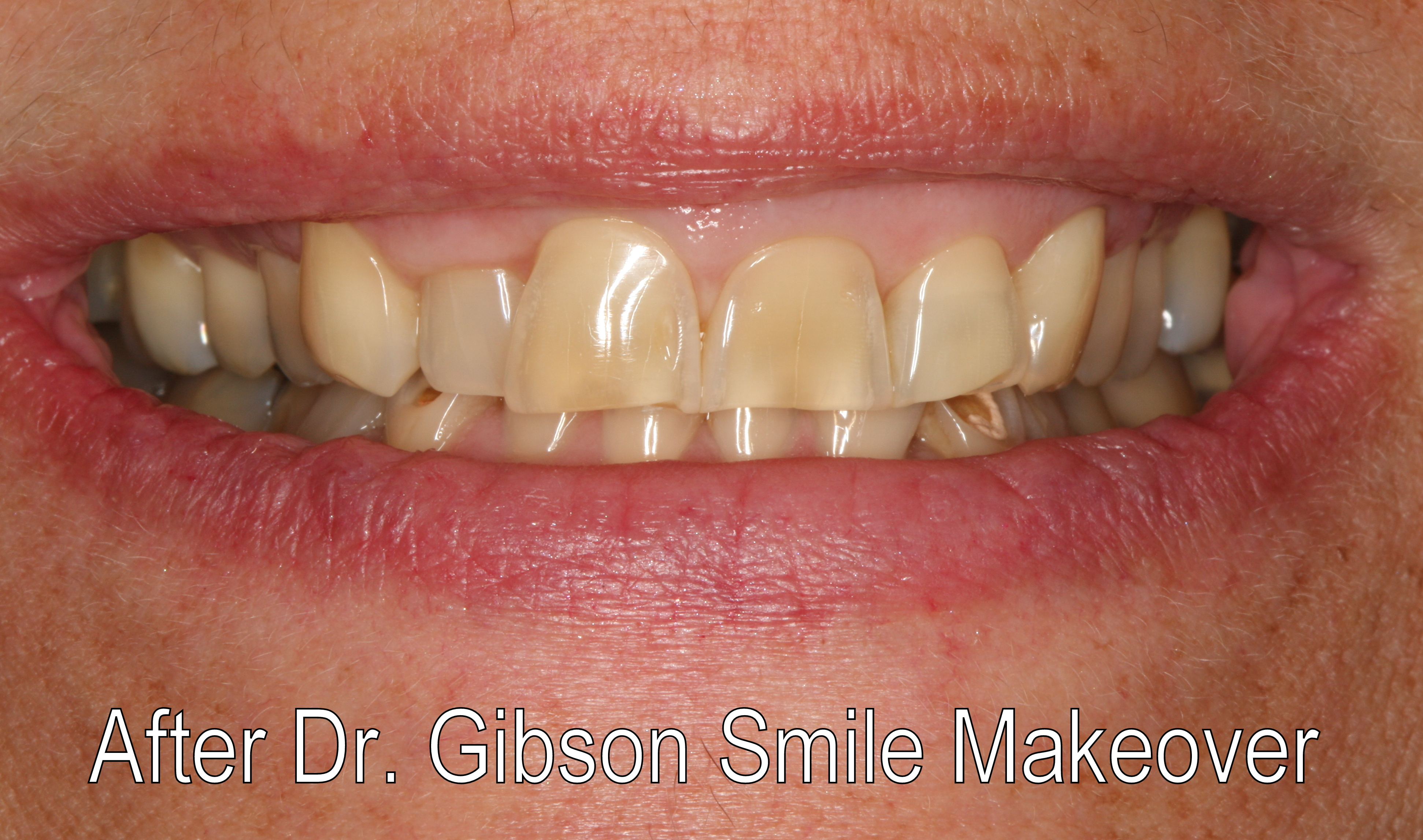 Smiles By Dr. Gibson Smile Makeover 2