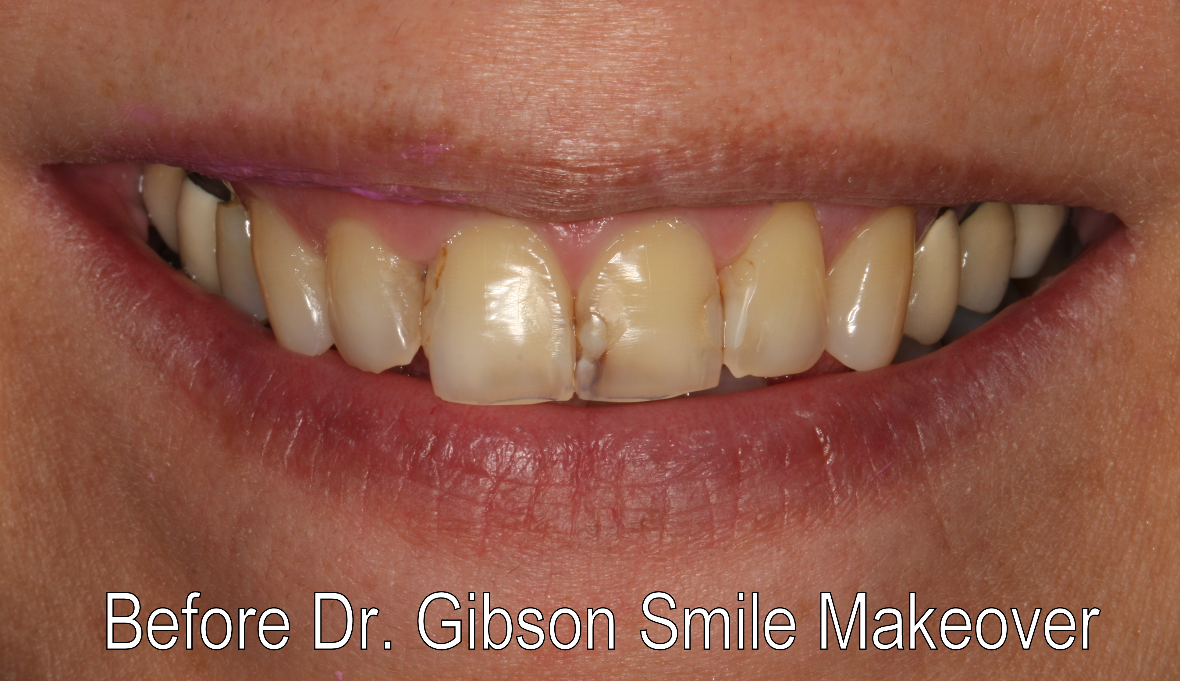Smiles By Dr. Gibson Smile Makeover 5