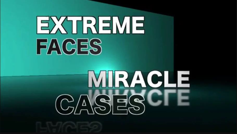 Extreme Cases Miracle Faces - Dr. Gibson Patients